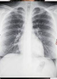 What_is_asbestos_cancer_and_is_there_a_cure